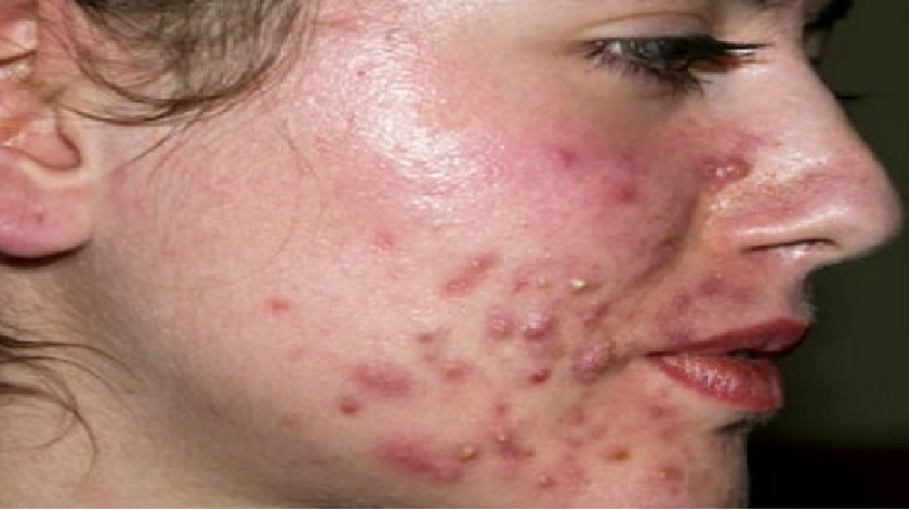 Natural Treatment Pimple Scars