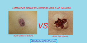 difference between entrance and exit gunshot wounds